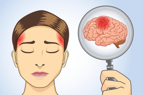 Omkring 60 tusen huvudsjukdom av dem led av migrän - kronisk smärta