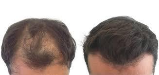 Provexin - för hårtillväxt - nyttigt - apoteket - Amazon