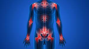 Motion Energy - för ledvärk - kräm - åtgärd - nyttigt